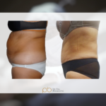 Liposucción + abdominoplastia